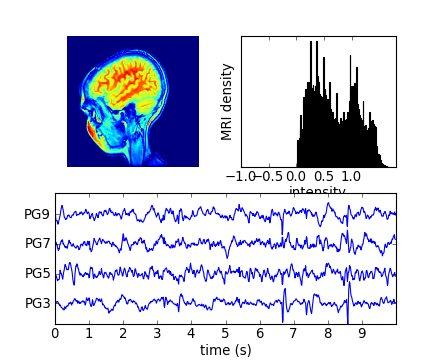 MRI with EEG1